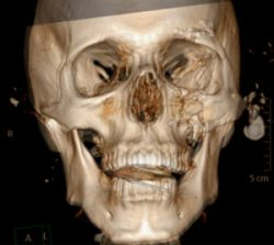 Facial Trauma (after Gun Shot Wound)