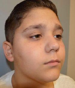 Facial Laceration