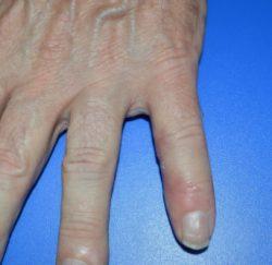 Hand Tumors