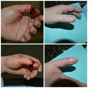 before-after-hand-trauma-1