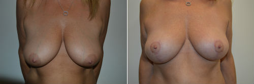 breast-lift-500x166