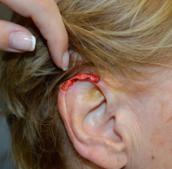 Ear Reconstruction after Mohs Surgery for Skin Cancer