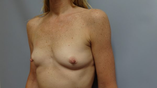 Anaono Designer Making Mastectomy Bras Beautiful