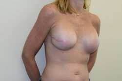 Breast Reconstruction (after Mastectomy for Breast Cancer)