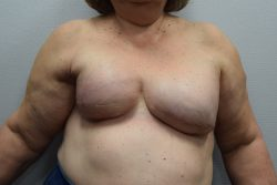 Breast Reconstruction (after Mastectomy and Radiation for Breast Cancer)