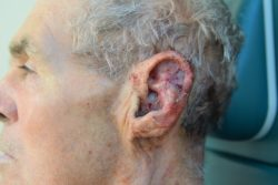Ear Laceration