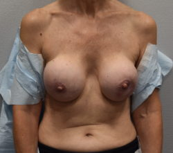 Implant Exchange