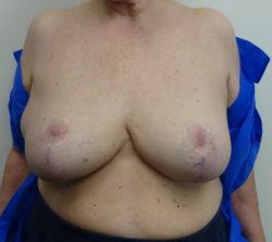 Breast Reduction