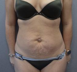 Abdominoplasty (Tummy Tuck)