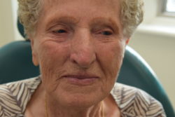 Facial Reconstruction after Mohs Surgery for Skin Cancer