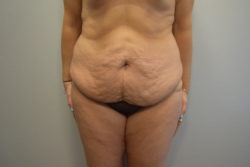 Abdominoplasty (Tummy Tuck)