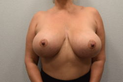 Implant Exchange with Breast Lift